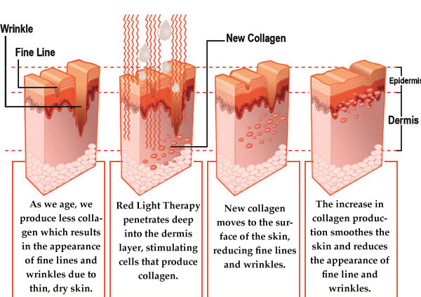 Understanding Red Light Therapy